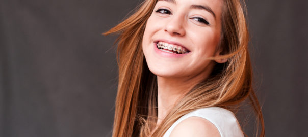 teenage girl with braces leaned back and laughing